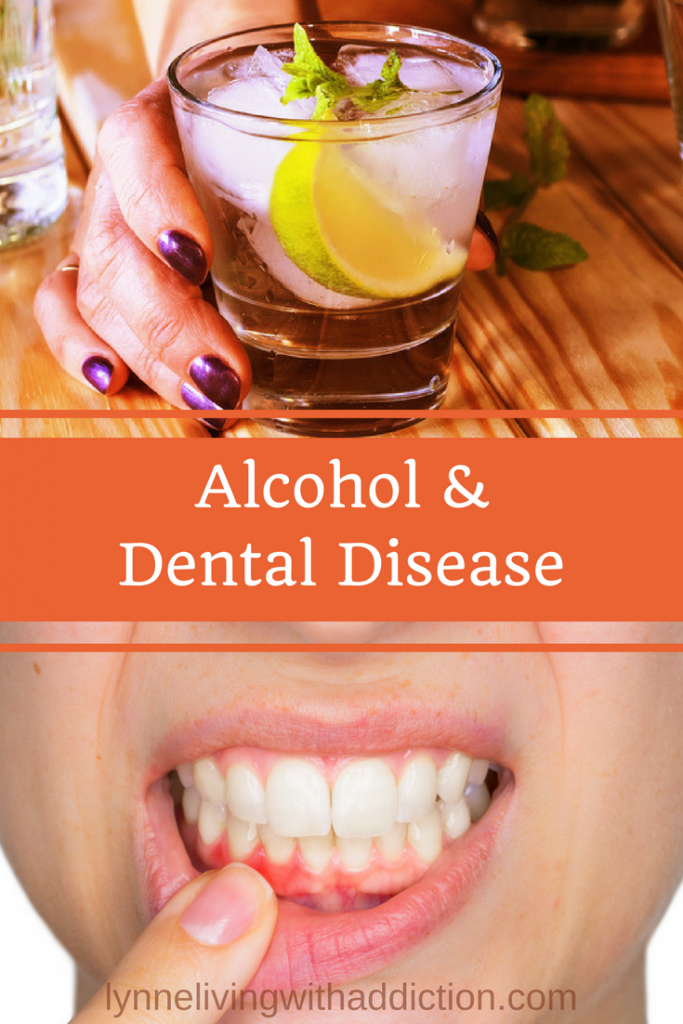Alcohol dental health